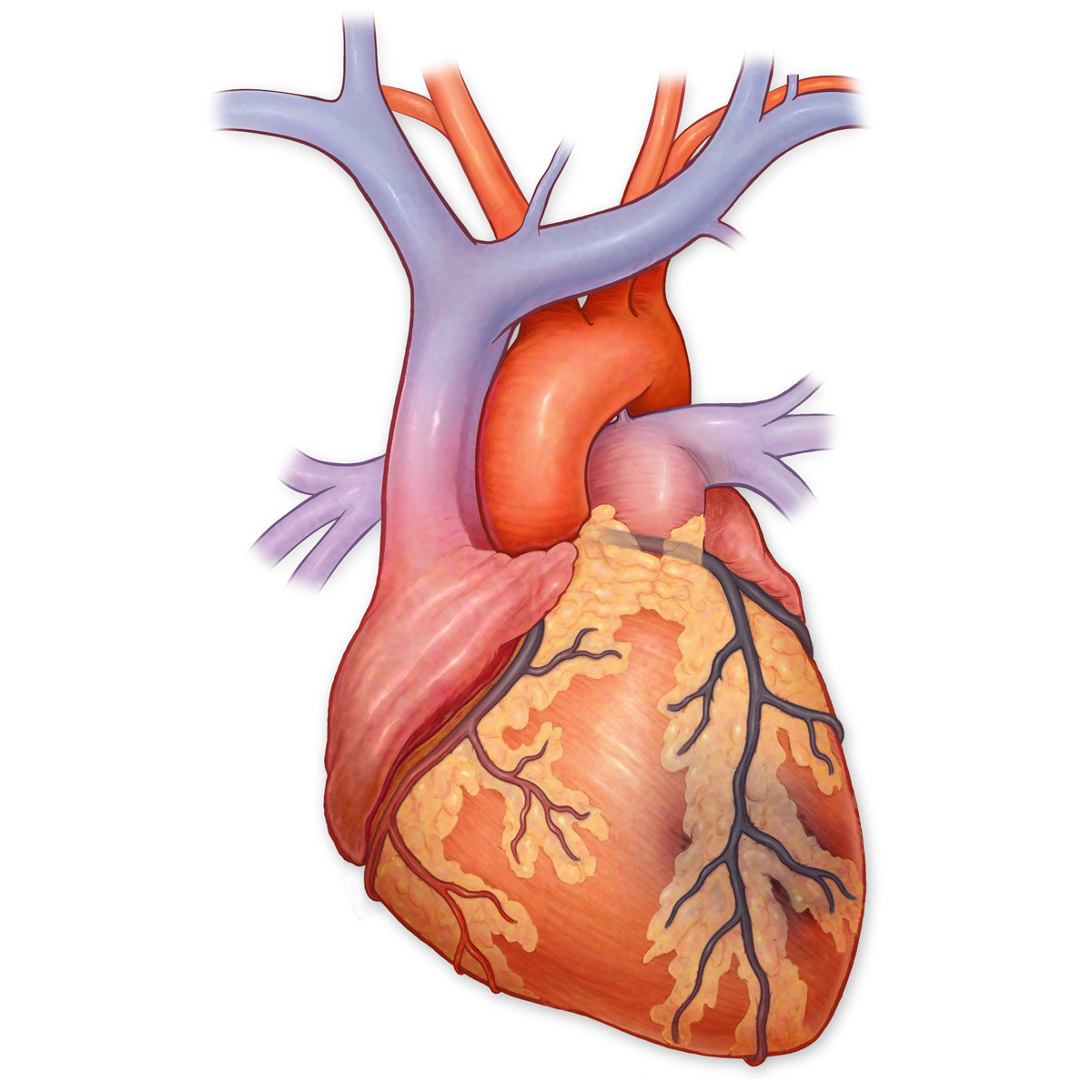 Medical Stock Art, Myocardial Infarction (heart attack)