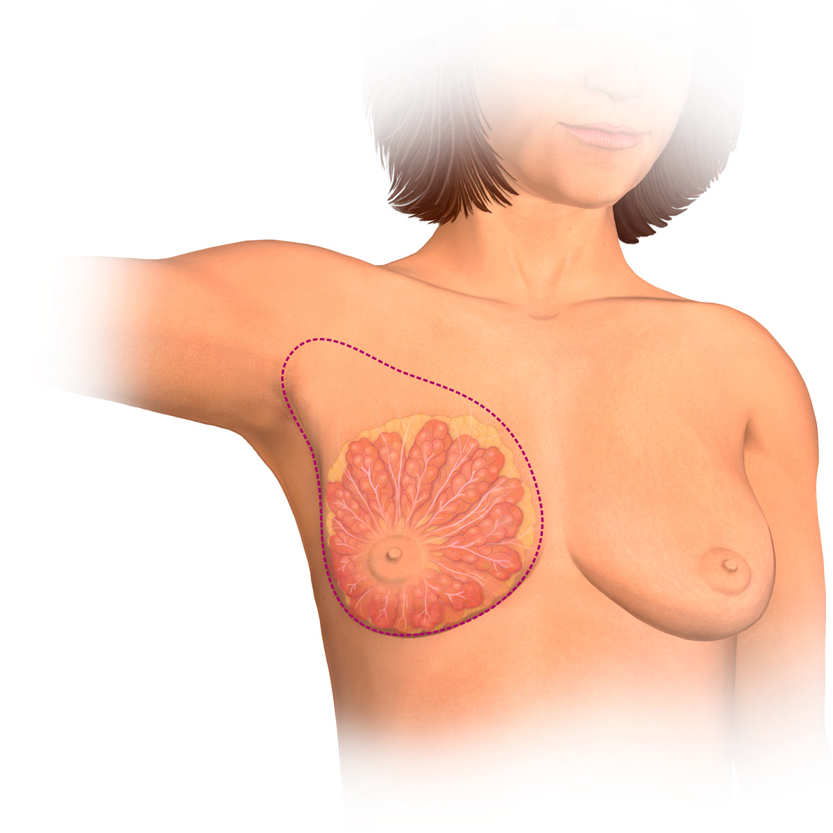 tissue breast medical for terminology
