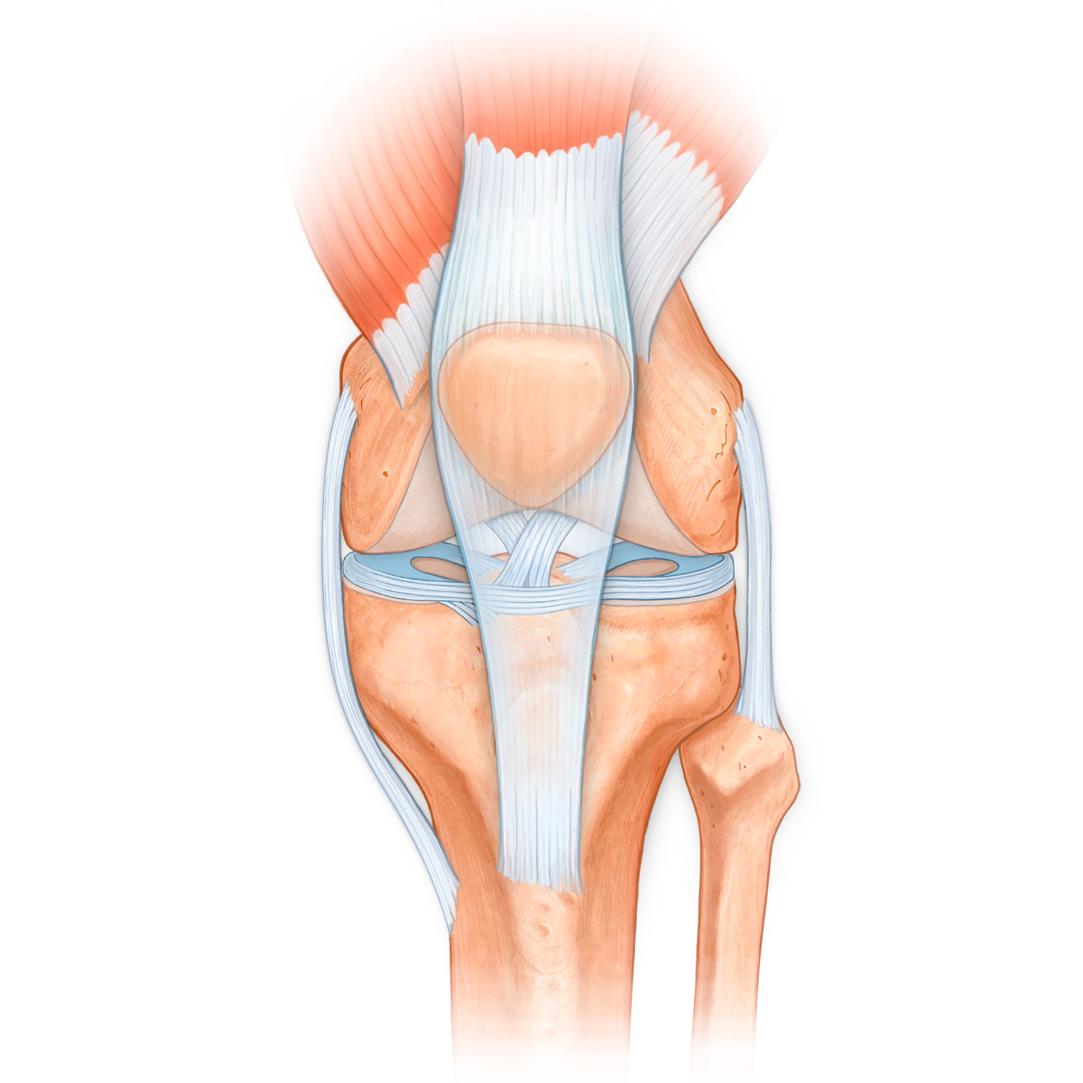 Medical Stock Art, Knee Joint, Quadraceps Femoris Muscles, Meniscus ...